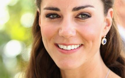 Twarz Kate nowym hitem medycyny estetycznej