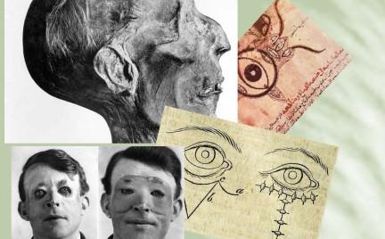 Chirurgia plastyczna: najciekawsze zabiegi od czasów starożytnych