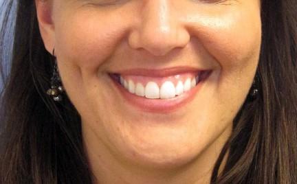 Botoks dla hollywoodzkiego uśmiechu