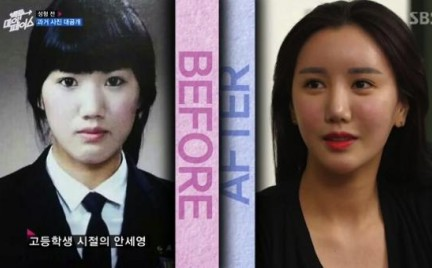 Back to My Face chirurgiczne reality show w Korei Południowej