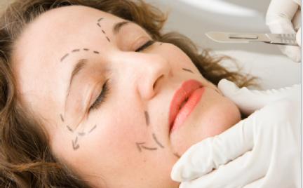 Zdecydujesz się na chirurgiczny lifting twarzy